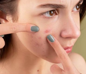 Kako se leče akne Šta tačno treba da bude tretman za mrljavu kožu
